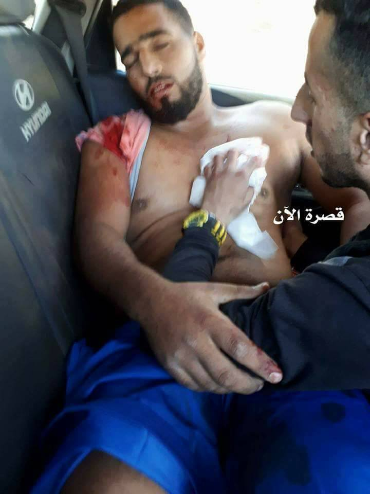 Young Man Shot In Chest As Israel's Occupation Forces and Illegal Israeli Settlers Continue Attacks On Qusra Village