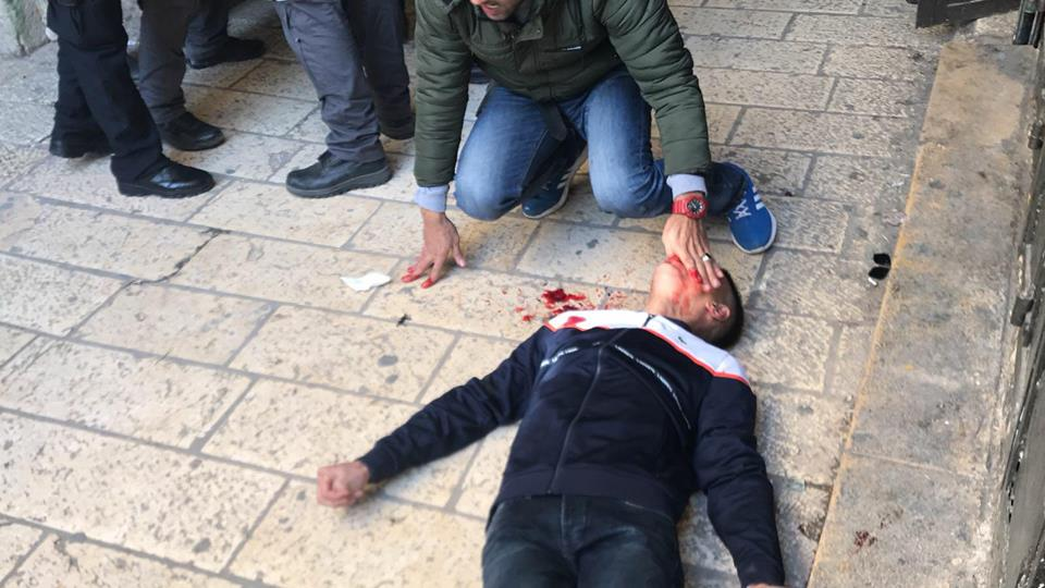 YOUTH ATTACKED NEAR AL-AQSA MOSQUE BY ILLEGAL ISRAELI SETTLERS