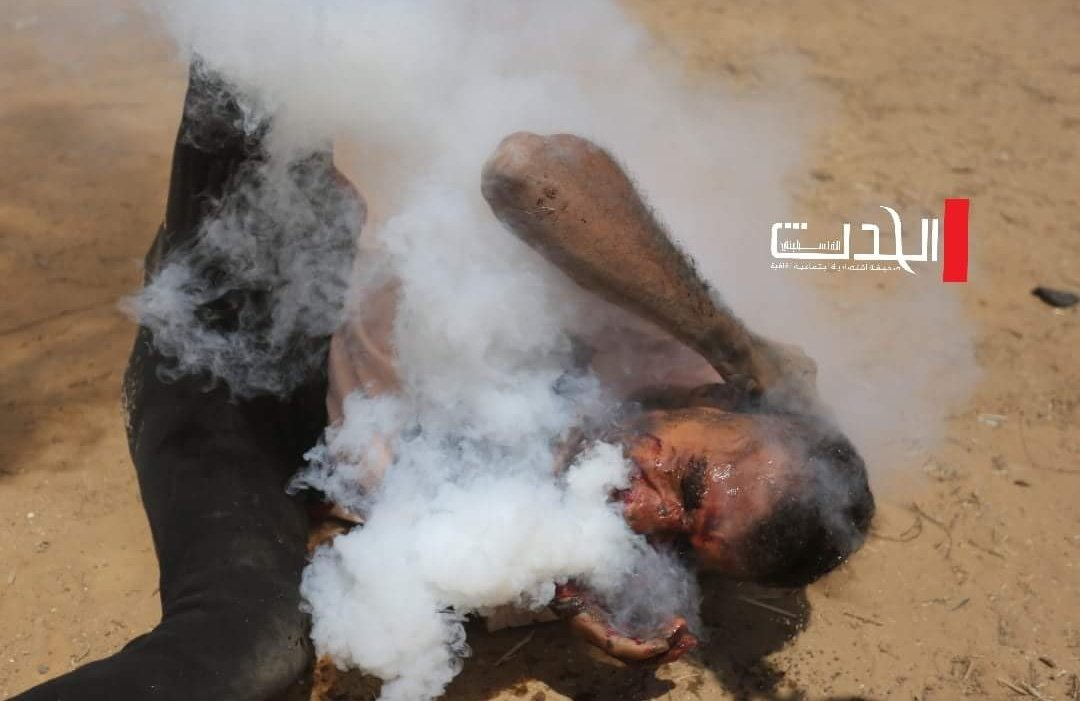 ISRAELI TEAR GAS GRENADE WOUNDS PROTESTER IN FACE