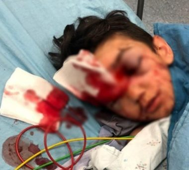 ISRAEL CRITICALLY WOUNDS A SMALL CHILD IN OCCUPIED EAST JERUSALEM